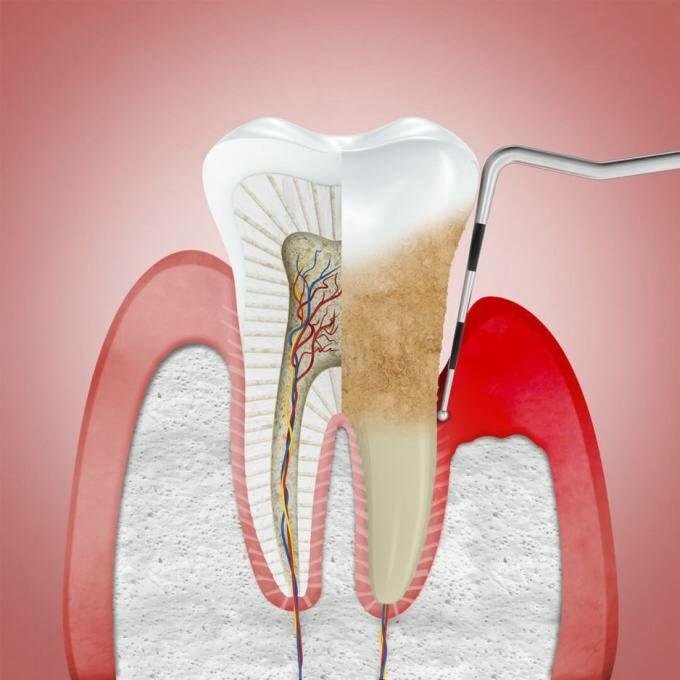 Без зубов – и без памяти?  Последние научные данные подтверждают тот факт, что...