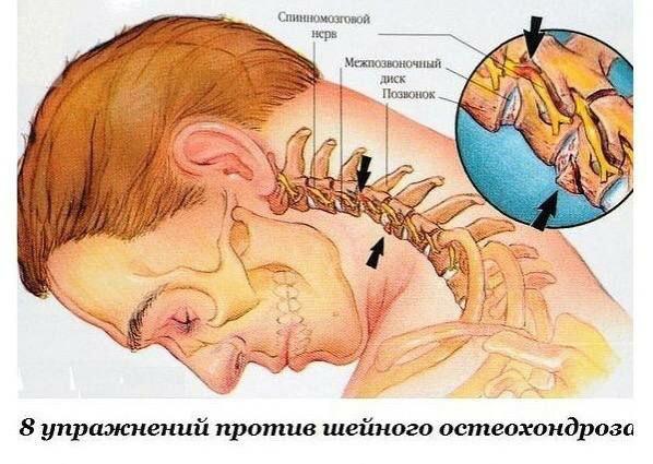 Восемь упражнений против шейного остеохондроза  1. Подбородок опустите к шее.